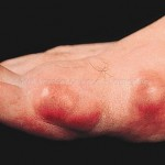 Gout  in Toe - Uric Acid Build Up